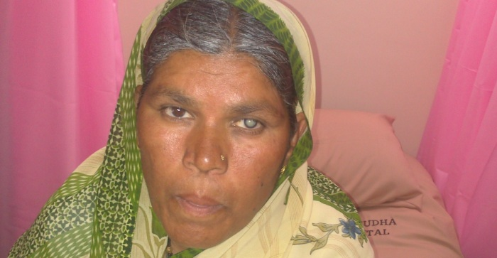 woman with catarct in one eye